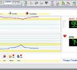 Pulzni oksimeter MIR - PC prikaz manjši
